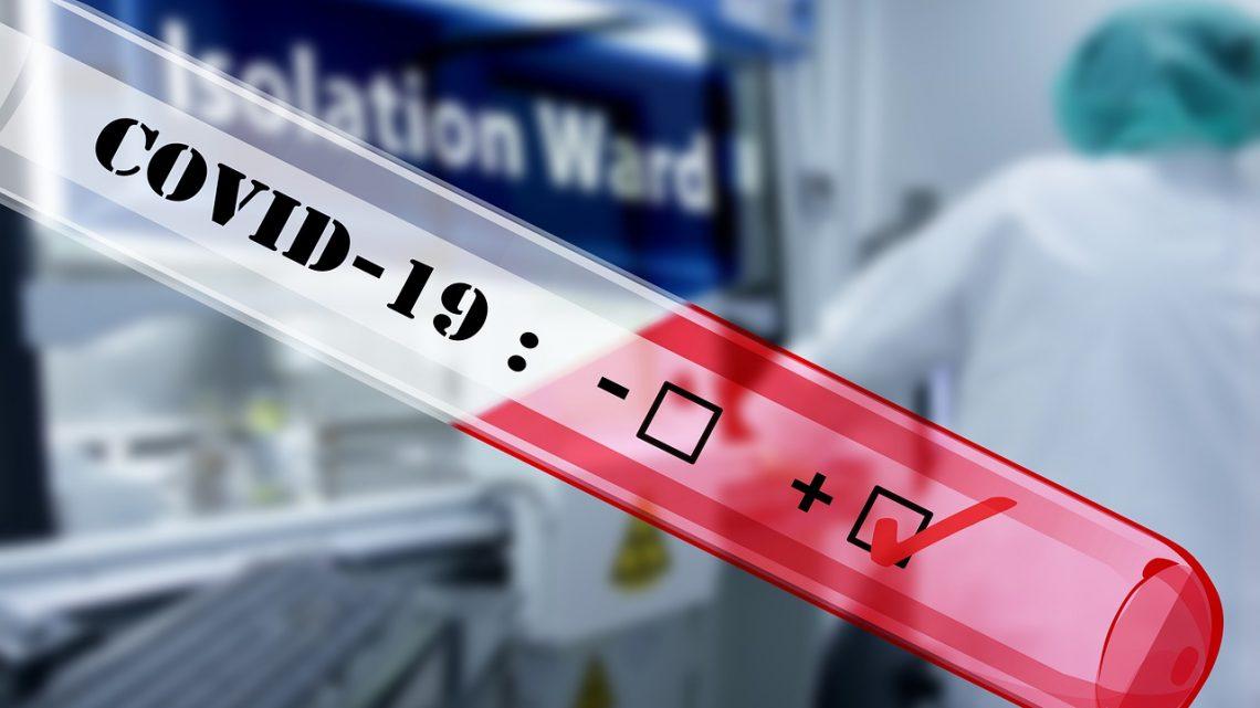Prévention de la COVID-19: comment se protéger?