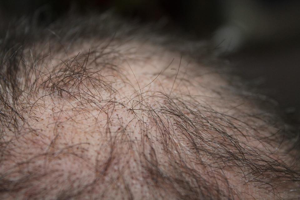 Top 3 des solutions à disposition à l'alopécie