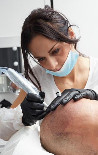 Tricopigmentation: dans quel cas recourir à cette pratique?